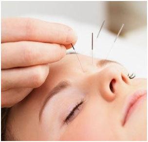 exemple d'aiguilles utilisées sur le visage